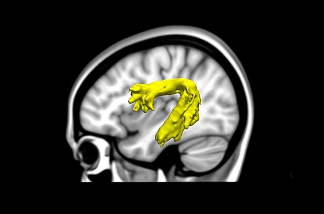 Escaneo cerebral para un diagnóstico precoz de la dislexia