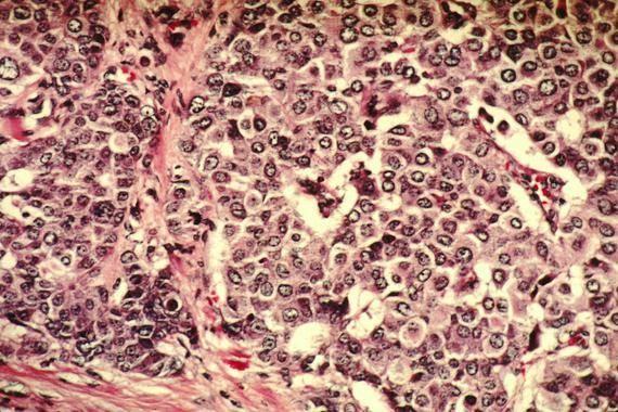 Desvelada la ruta que siguen las células del cáncer de mama para invadir otros tejidos