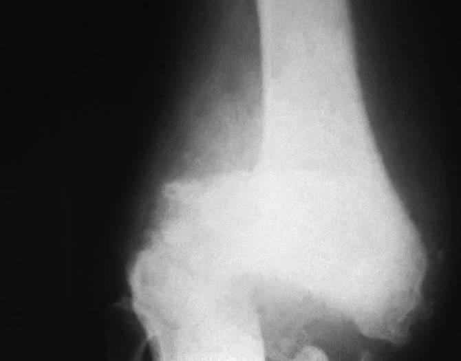 ¿Melatonina para prevenir la osteoporosis?