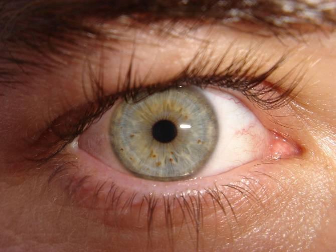 Espermatozoides en ojo humano