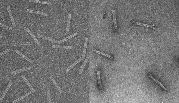estas imgenes captadas mediante microscopio electrnico muestran las estructuras vacas izquierda y cargadas con el frmaco anticncer derecha
