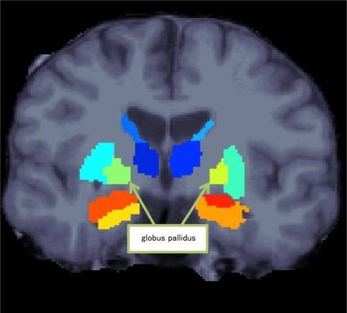 Anomalía anatómica cerebral relacionada con la esquizofrenia ...