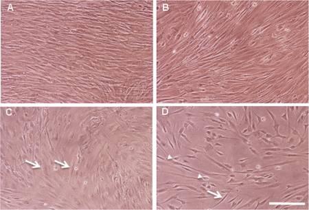 Cultivos de fibroblastos humanos. (Foto: Durán et al 2018)