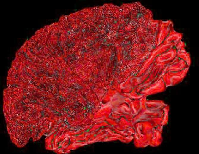 La obesidad causada por la dieta es capaz de causar daños cerebrales  Img_6607